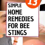 picture of bees sting reactions home remedies for bee stings