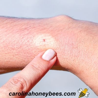picture of skin reactions to a bee sting