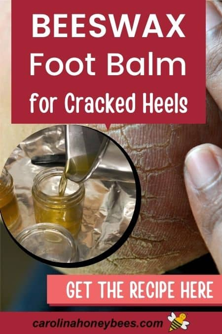 Cracked heels and container of beeswax foot balm recipe image.
