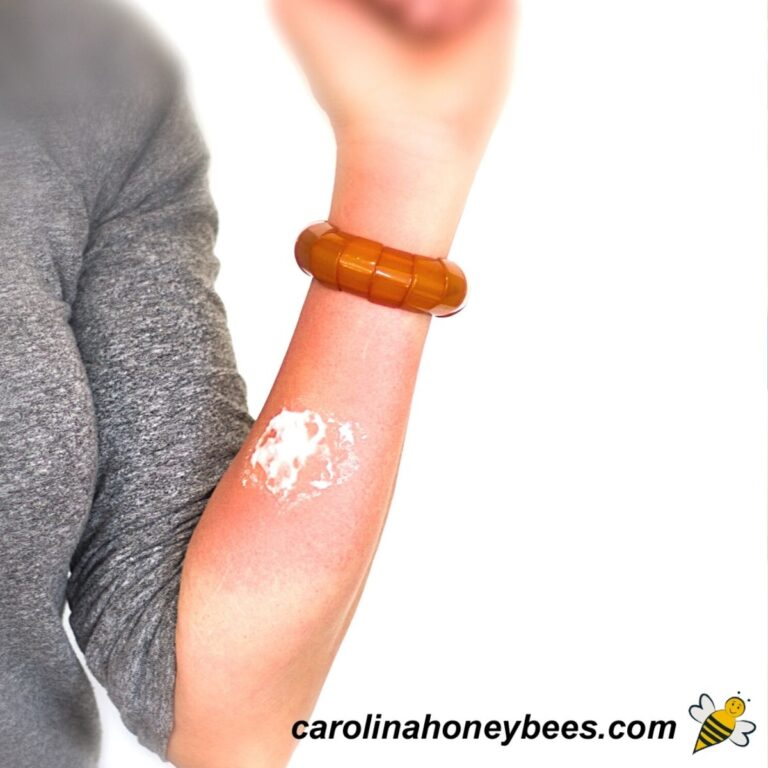 13 Simple Home Remedies for Bee Stings